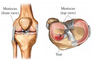 Операция мениска коленного сустава